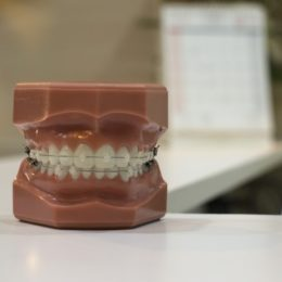 Aparate Dentare la 3D Dental